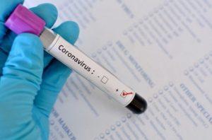 На Буковине обнаружили лишь 15 новых случаев коронавируса за сутки