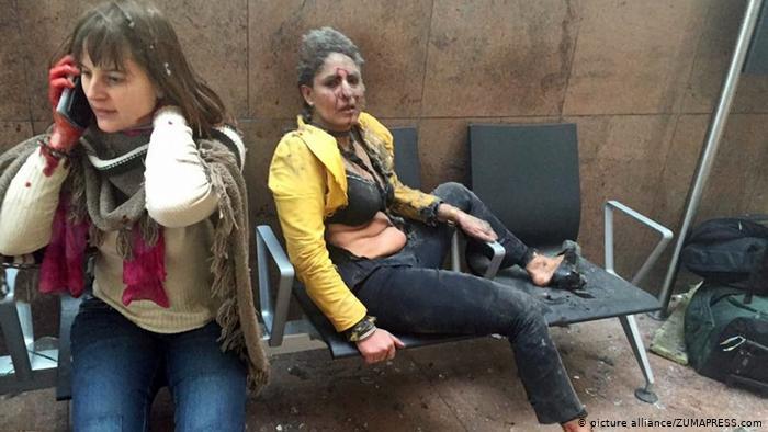 Женщины, получившие ранения в результате взрывов в аэропорту Брюсселя